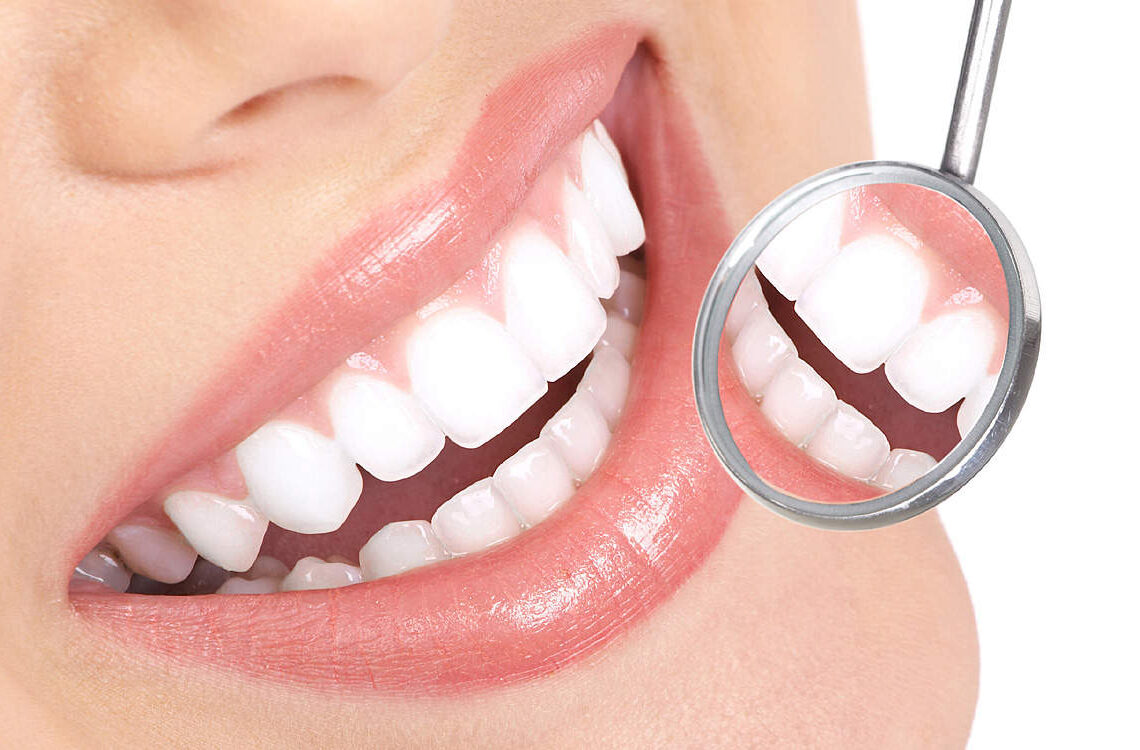 dr-baniczky-fogorvos-fogaszat-fogfeherites-implantatum-fogpotlas-sopron-slide3
